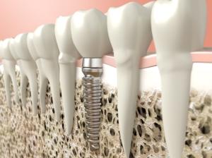 Winter Park dental implants