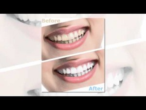 Teeth Whitening Winter Park FL – Call 407-629-2161